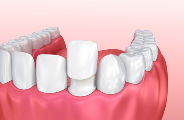 Rendering of jaw with porcelain veneer on tooth